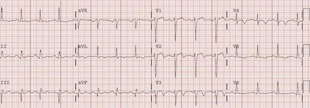 Wellens Syndrome - Biphasic T Waves