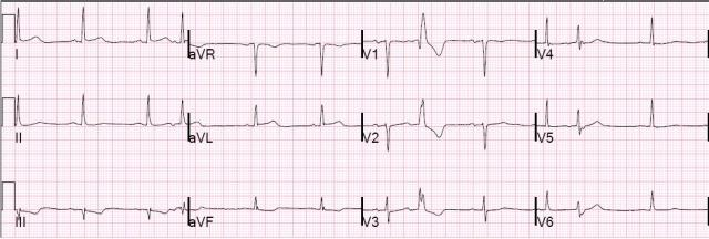 D1 occlusion with minimal STE