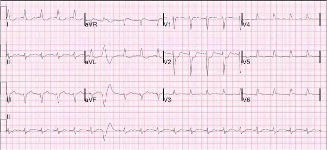 Posterior STEMI - V4, V5 & V6 are recording V7, V8 and V9 respectively